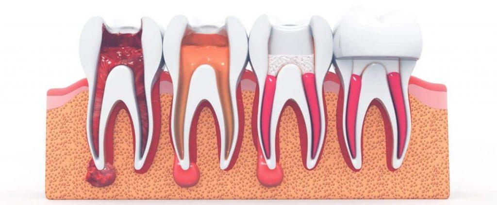 cuando es necesaria una endodoncia clinica ilzarbe