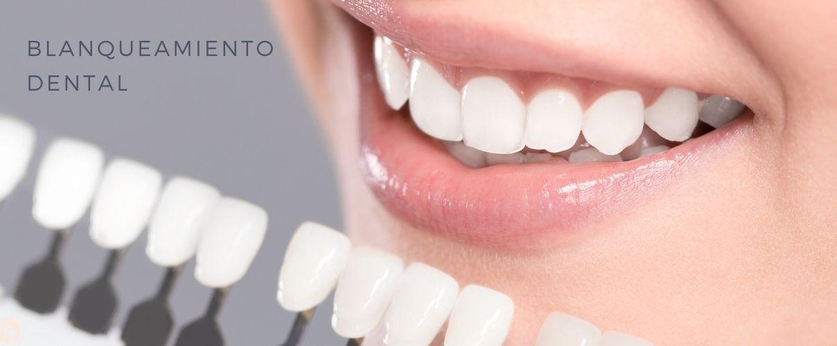 blanqueamiento dental philips zoom. o express clinica ilzarbe